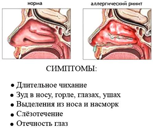 Симптомы аллергической реакции