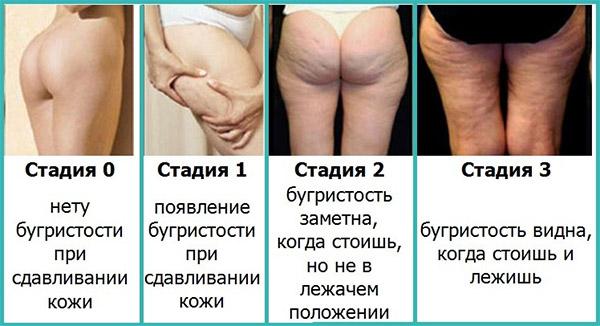 Эффективен ли массаж от целлюлита