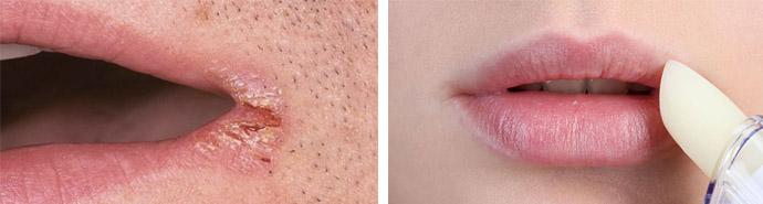 Как заживить трещины на губах 69
