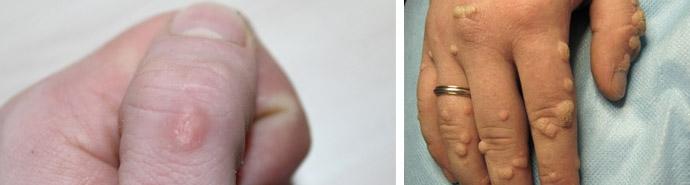 Бородавка на руці