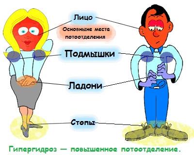 Что такое гипергидроз