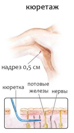 Гипергидроз подмышек