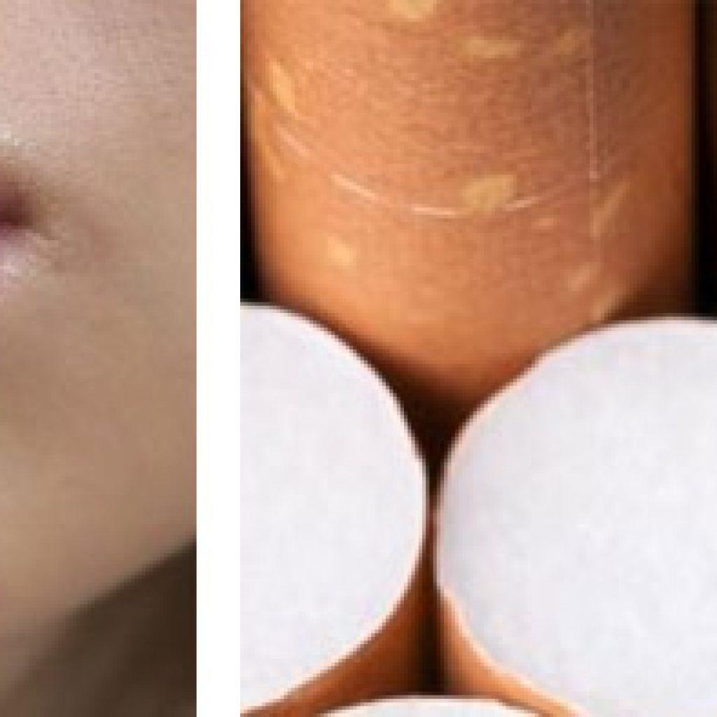 Аллергическая реакция на табак
