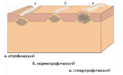 Виды шрамов