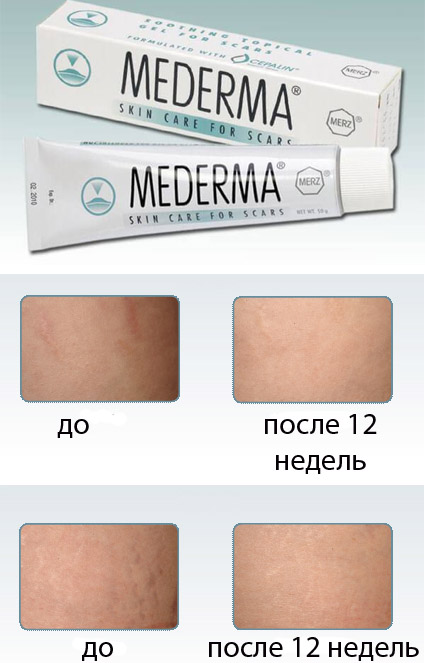 Гель Mederma