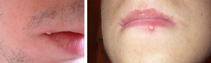 Гнойники в области губ
