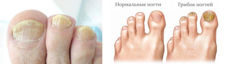 Как лечить грибок ногтей на ногах золотым усом