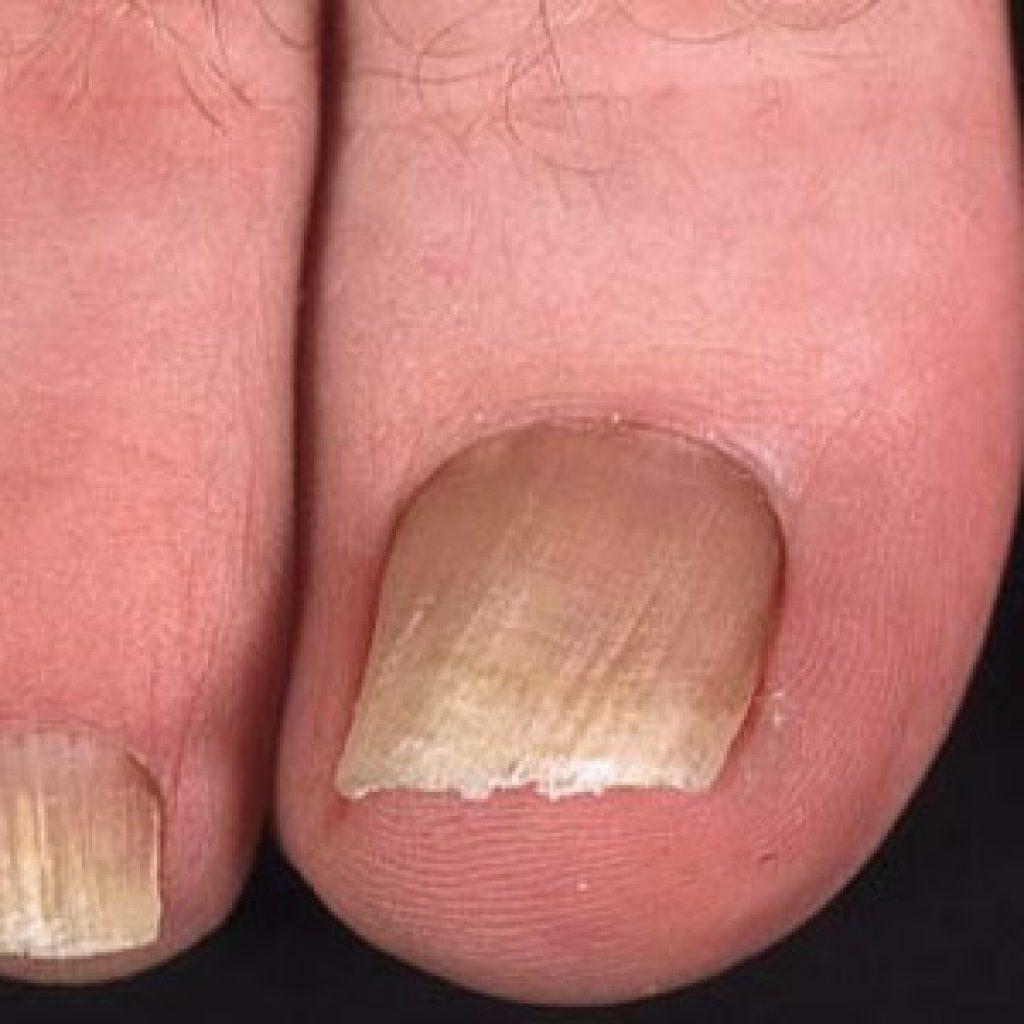 Грибок ногтевых пластин на ногах на начальной стадии