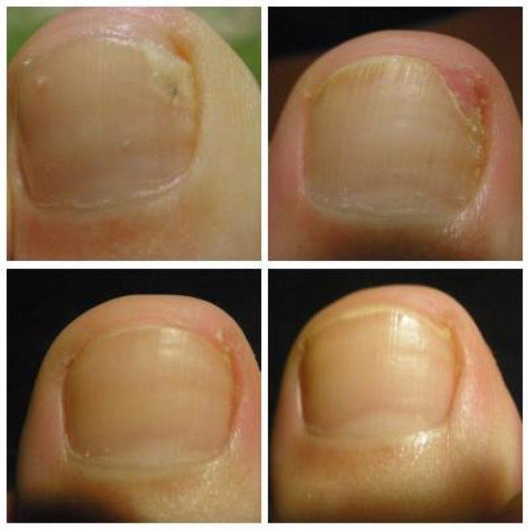 Действие флуконазола при грибке ногтей