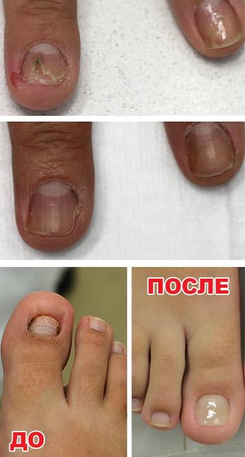 До и после лечения грибка