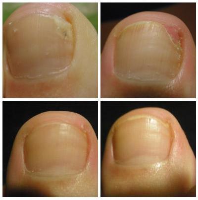 До и после терапии Микозаном