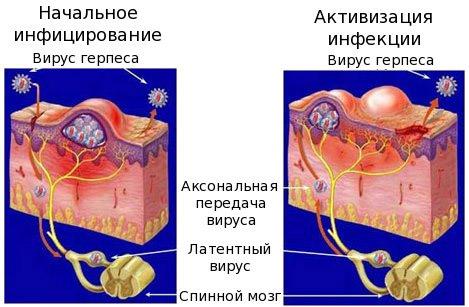 Заражение вирусом герпеса