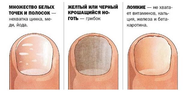 Как распознать заболевание грибок стопы