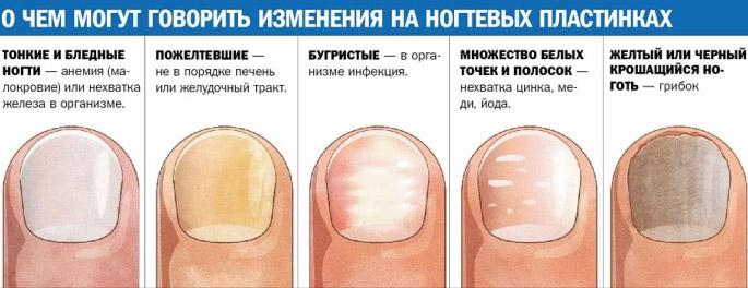Неровная поверхность ногтя причины