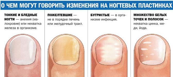 Изменения на ногтевых пластинках