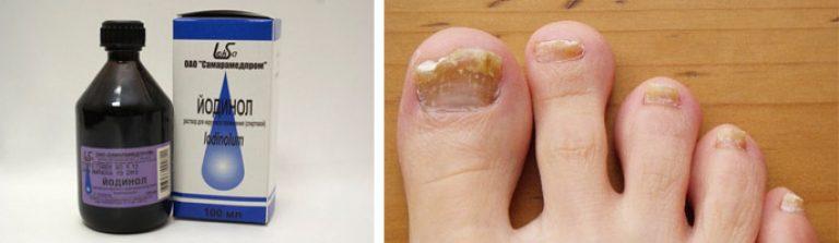 Как лечить кожу головы от грибка ногтей