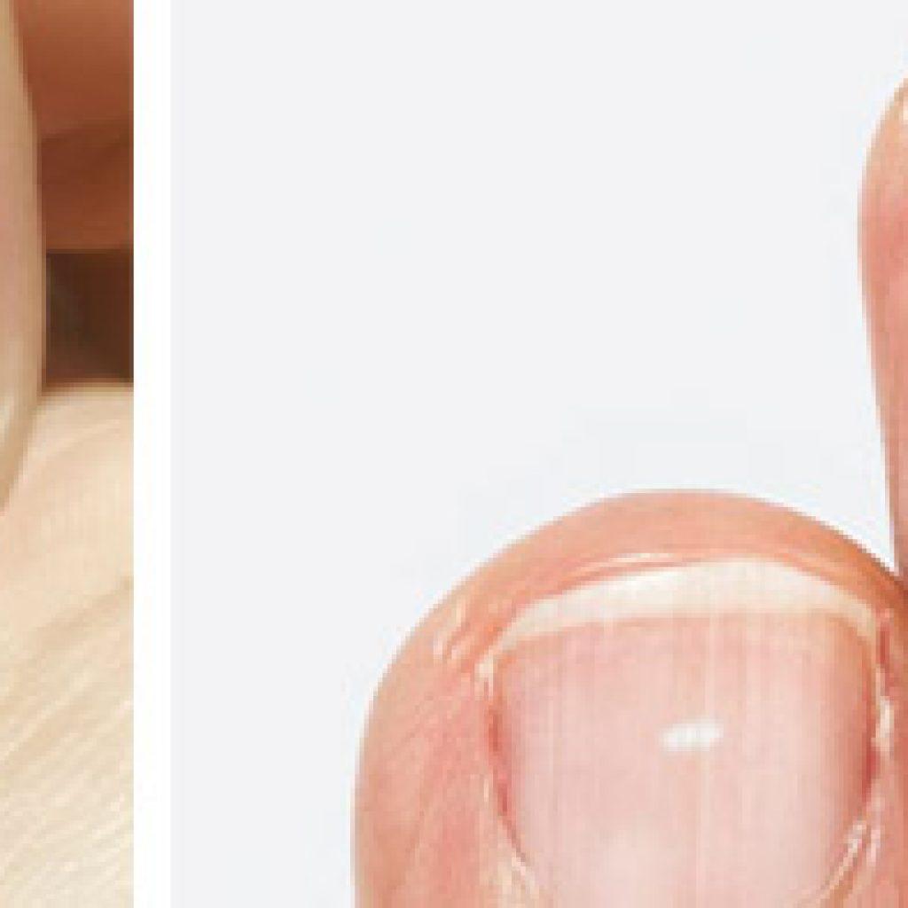 Как выглядят пятна на ногтях