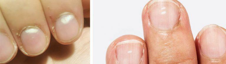 Как победить грибок на больших пальцах ног