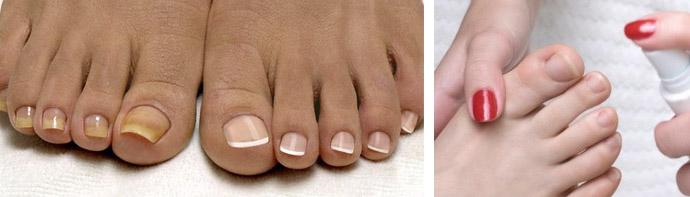 Какой врач лечит грибок ногтей на ногах: к какому доктору обратиться с онихомикозом