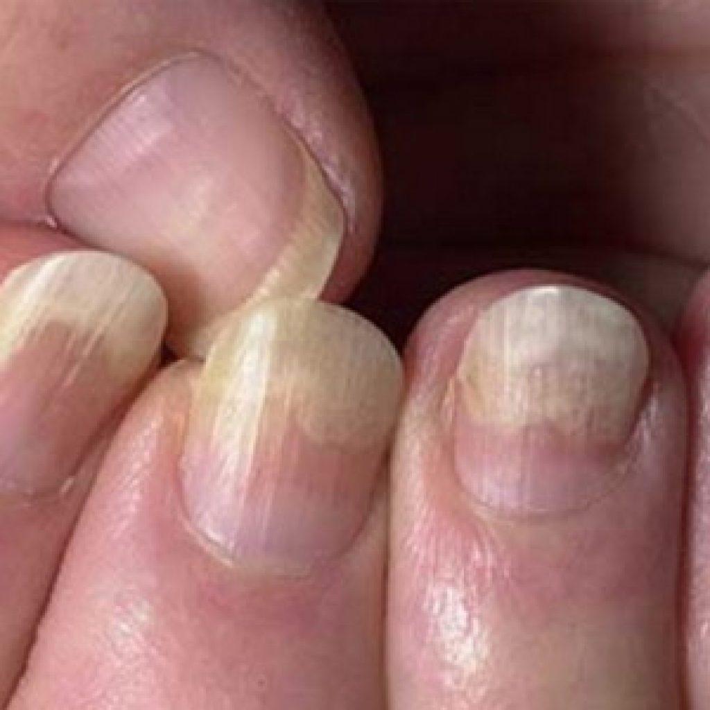 Как лечить грибковую инфекцию ногтей на руках - фото начальной стадии