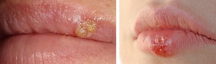 Белый прыщ на внутренней стороне губы