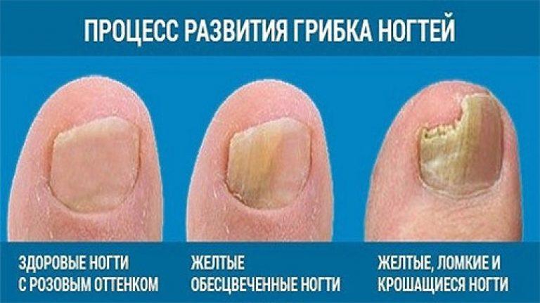 Пульс терапия в лечении грибка ногтей