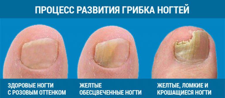 Как и чем лечить грибок ногтей на ногах отзывы