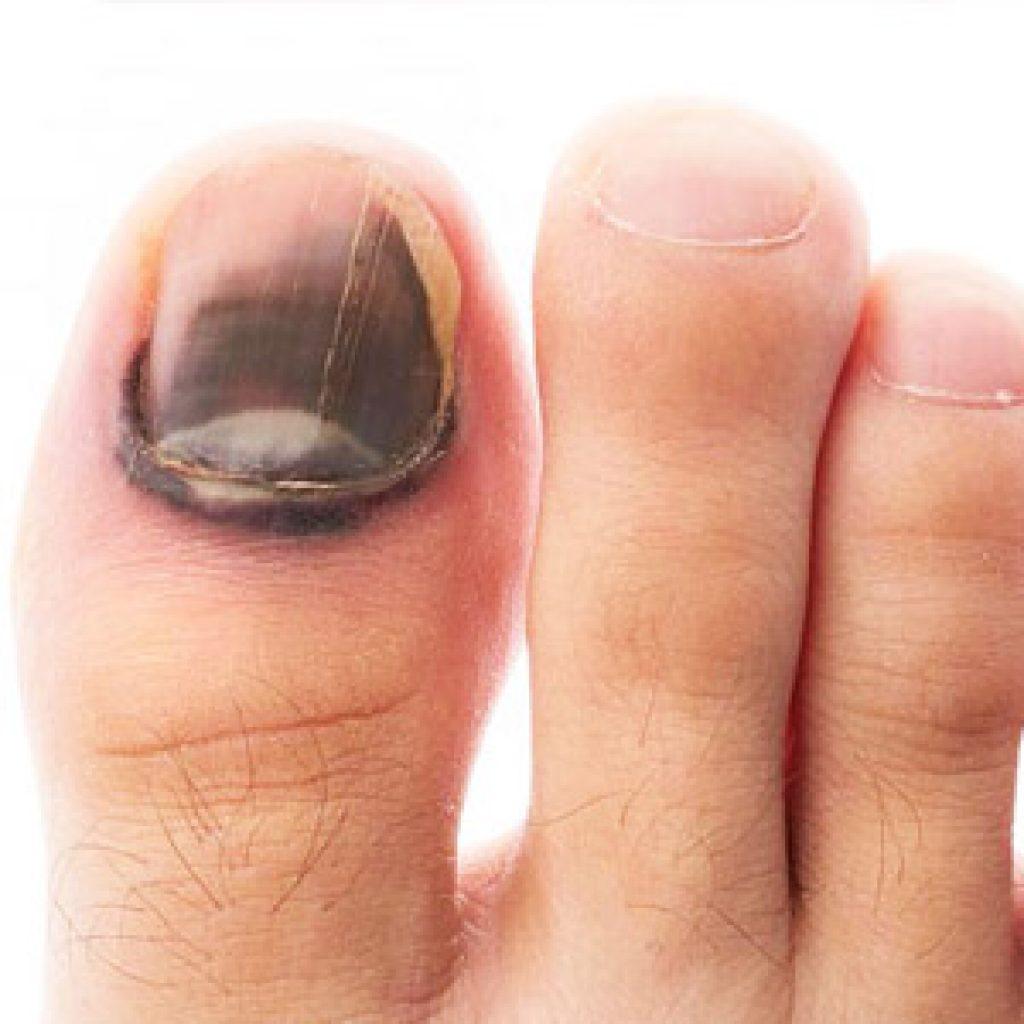 Кто лечит грибковую инфекцию ногтей на ногах