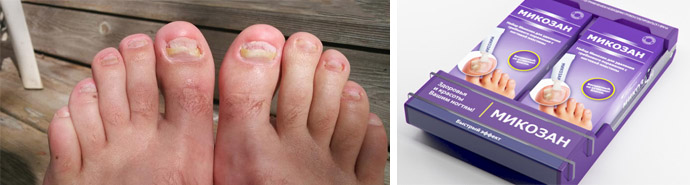 Лечение грибка на ногтях ног микозан
