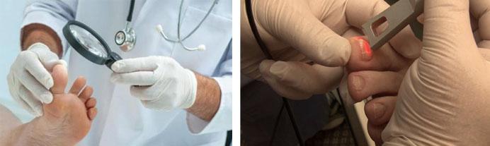 Лечение грибка ногтей лазером: отзывы, противопоказания, цены