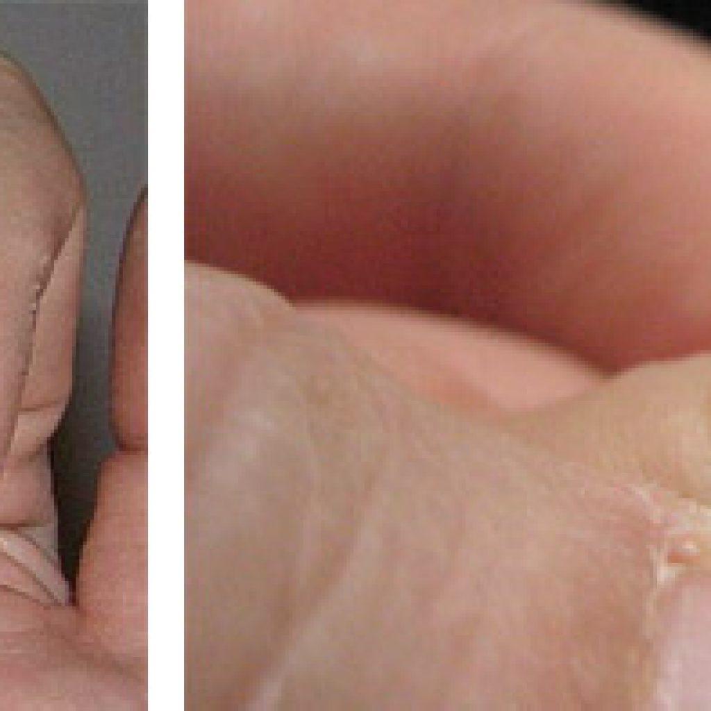 Ломкие ногти у детей