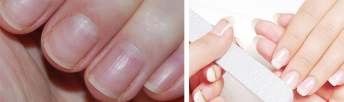 Волнистые ногти на руках причина