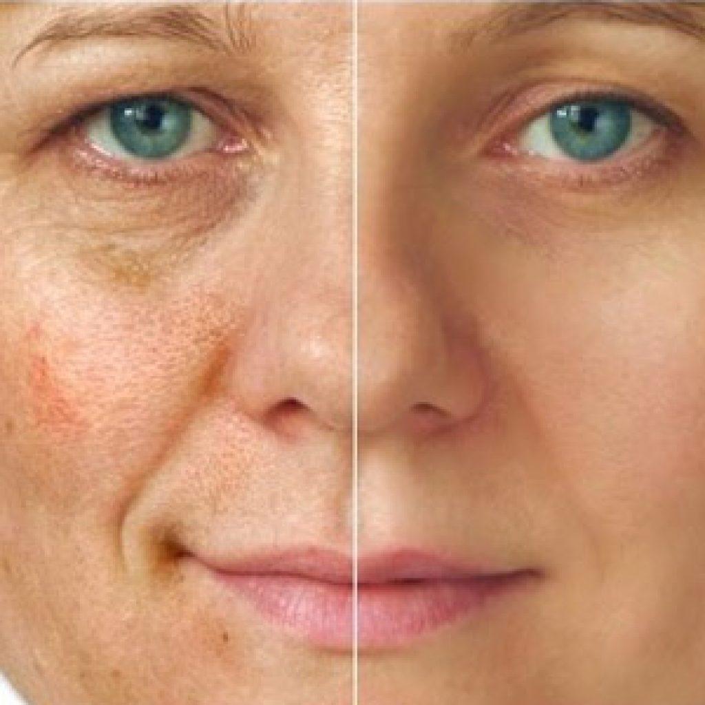 Отбеливающие кремы для устранения пигментации на коже лица