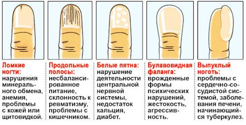 Пятна под ногтями на руках