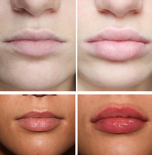 После секса опухают губы