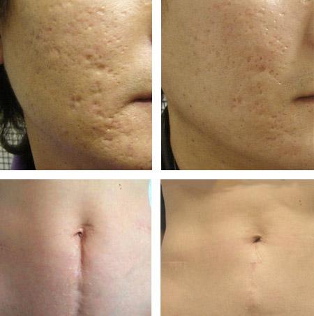 лазерное удаление шрамов и рубцов фото до и после