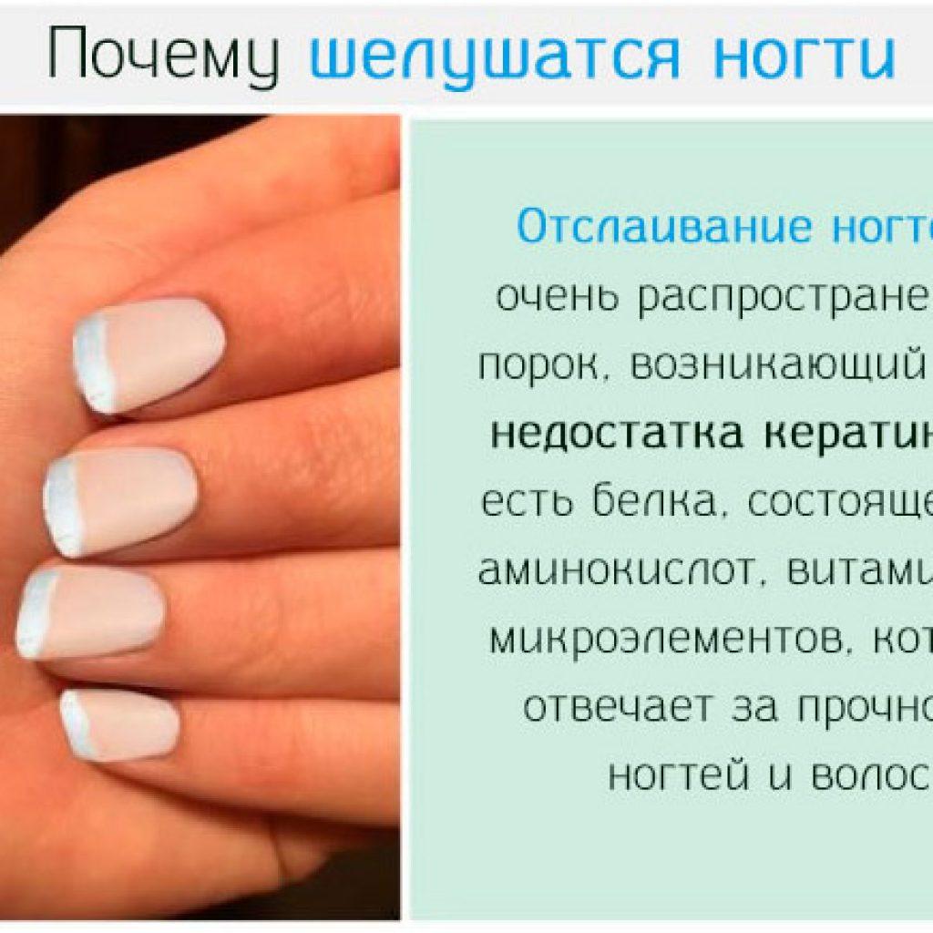 Почему шелушатся ногти