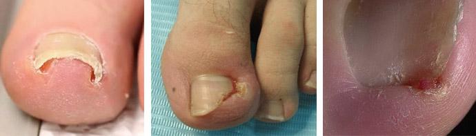 Признаки врастания ногтевых пластин