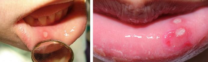 Признаки стоматита на губах