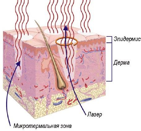 Принцип действия фототермолиза
