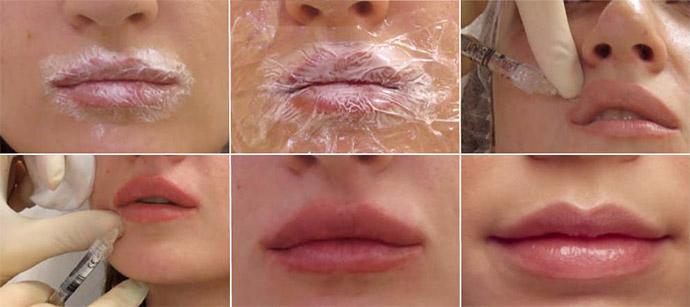 Процедура накачивания губ
