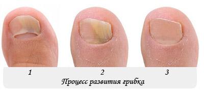 Процесс развития онихомикоза