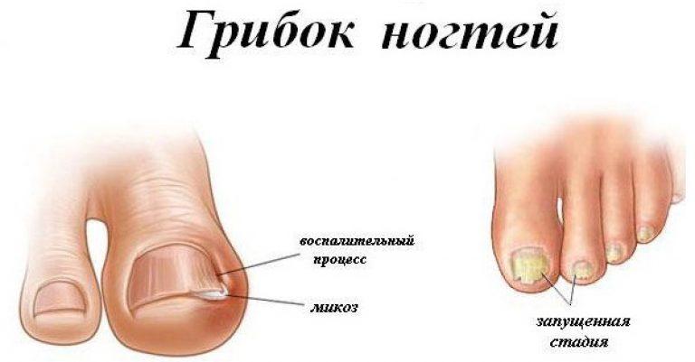 Грибок ногтя на ногах симптомы и лечение