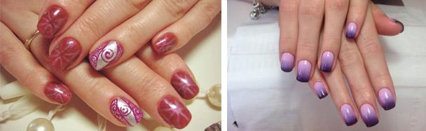 Как отличить псориаз ногтей от грибка - фото симптомы и отличия заболеваний