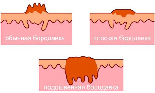 Разновидности наростов