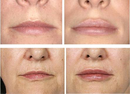 Результат коррекции губ