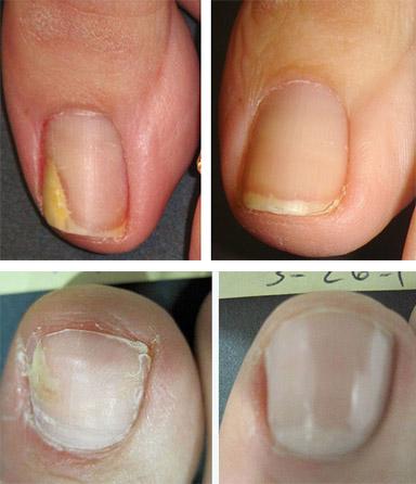 Офломил лак от грибка ногтей цена