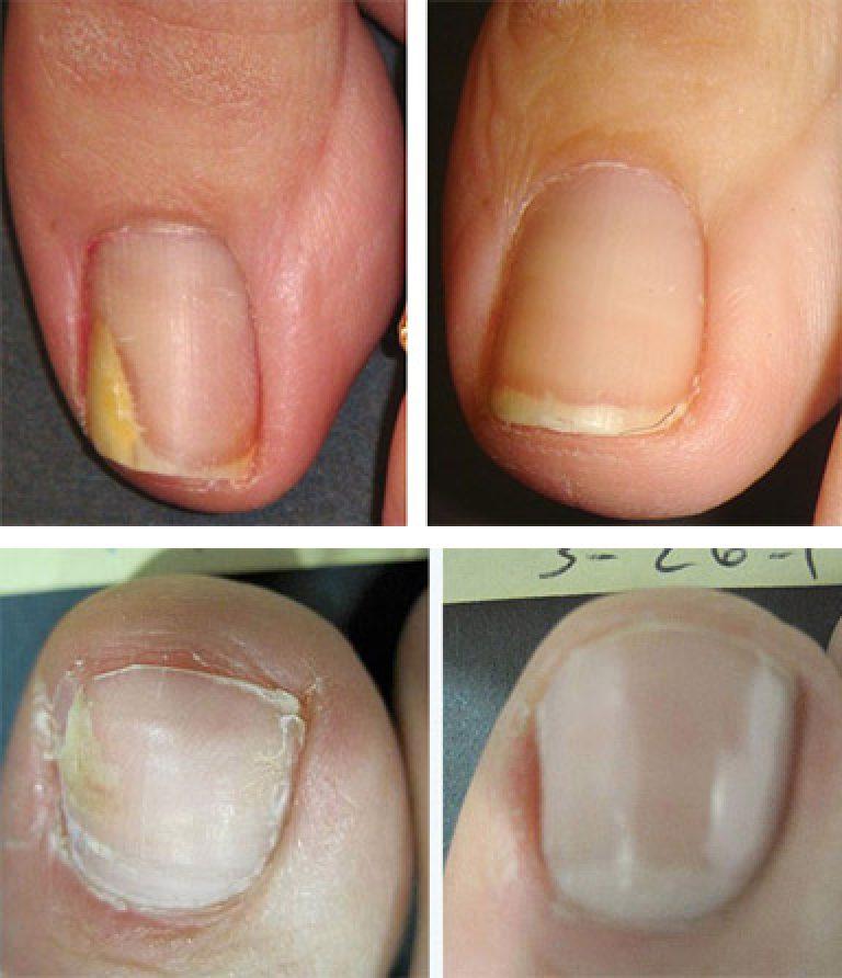 Экзодерил лечение грибка на ногте рук