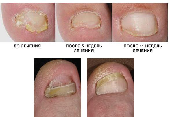 лечение грибка ногтей в израиле что перед