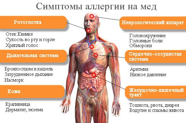 Как делают кожные пробы на аллергию